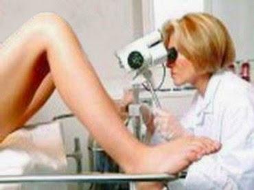 gejala kanker serviks