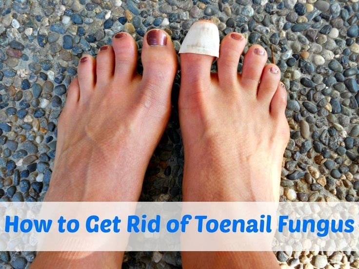 How to Get Rid of Toenail Fungus | Top Ways to Get Rid of Nail Fungus