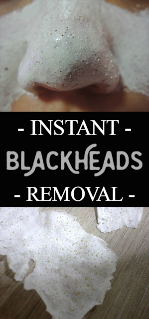 Instant blackheads removal