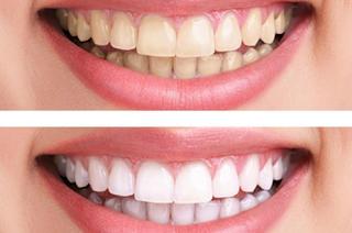 Teeth Whitening,