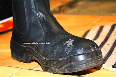 Ujung sepatu rusak karena tuas perseneleng