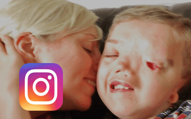 إنستجرام يحذف صورة لطفل مصاب بتشوه خلقي فى عيونه وأمه تنجح في إعادتها بعد هجوم كبير على التطبيق