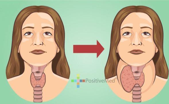 Punca Tiroid Dan Apa Bahaya Penyakit Tiroid
