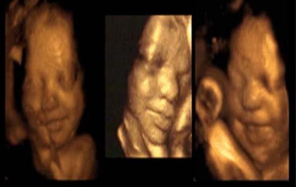 Mengejutkan !!! Ini Yang Terjadi Pada Bayi Dalam Kandungan Ketika Ibunya Menangis Atau Stres