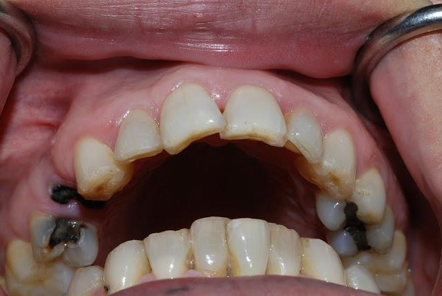 Sâu răng có thể gây ra bệnh tiểu đường