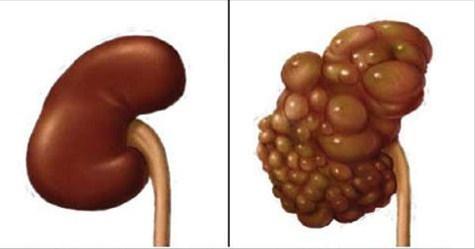 como curar los riñones