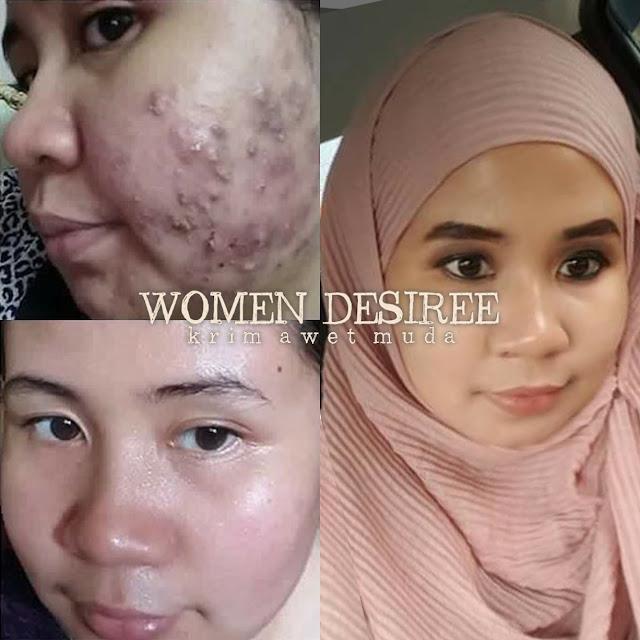 Bukan sebab skincare, tapi masalah kulit ini berpunca dari darah kotor.