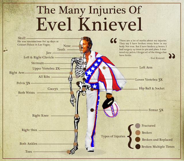 the many injuries of evel knievel1 - Um herói de carne e muitos ossos (quebrados)