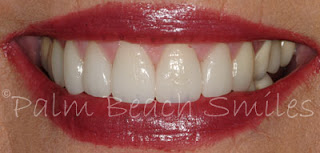Smile photo - combination of porcelain veneers and crowns done by Dr. Michael Barr