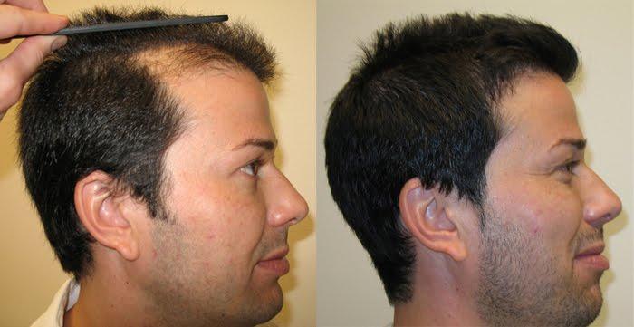 زراعة الشعر بتقنية الdhi