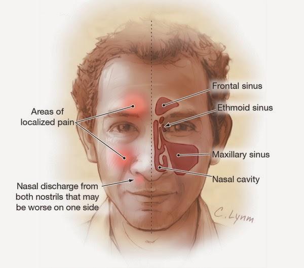 Sinus Pain Above Eyebrow Jidimakeup