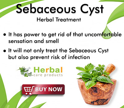 https://www.herbal-care-products.com/sebaceous-cyst