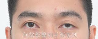 眼瞼下垂|提眼肌手術|兩眼無神|眼瞼下垂(提眼肌)手術案例分享