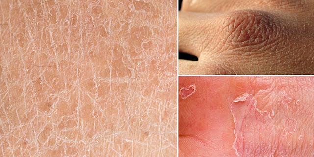 7 Odd Homemade Tricks To Get Rid Of Dry Skin Quickly!