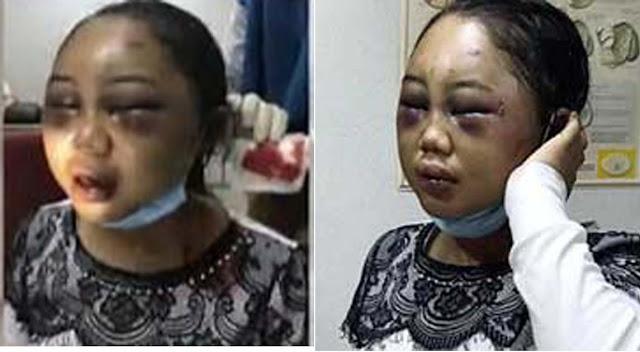 Suyatin TKI Asal Asahan yang disiksa di Malaysia