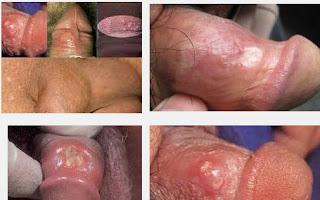 jenis obat resep dokter kelamin pria lecet