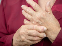 Alternative medicine for arthritis