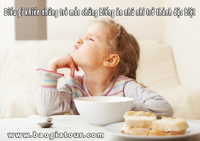 Điều gì khiến những trẻ mắc chứng biếng ăn nhũ nhi trở thành đặc biệt
