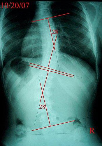 脊椎側彎, 脊椎側彎背架, 脊椎側彎矯正, 脊椎側彎治療, 脊椎側彎 物理治療