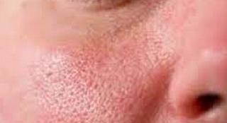 Cara Ampuh Mengecilkan Pori-Pori Wajah