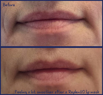 Feeling much smoother after a Replen10 lip mask treatment