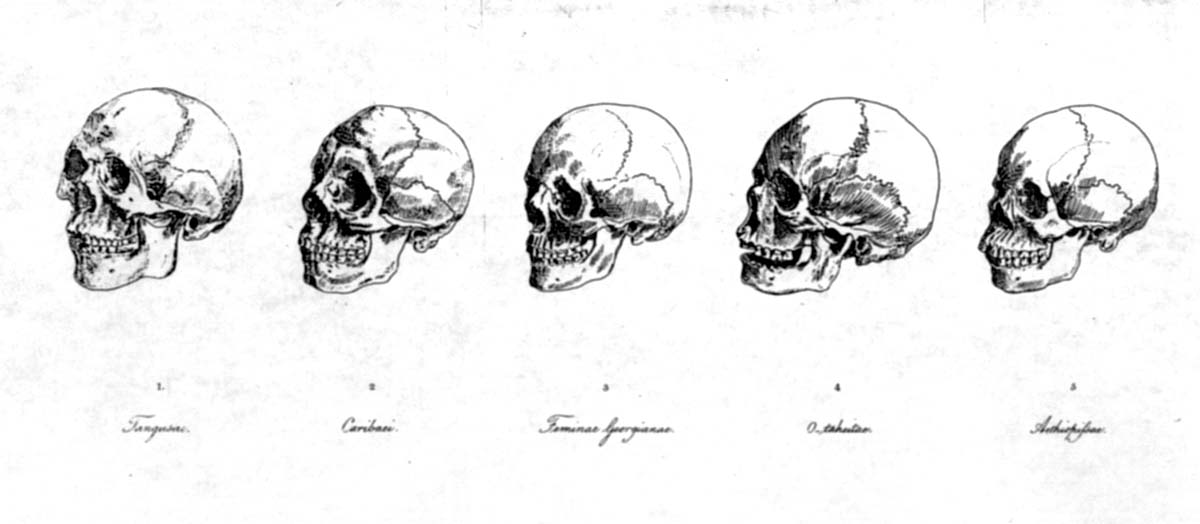 Until Darwin: Science & the Origins of Race: Darwin