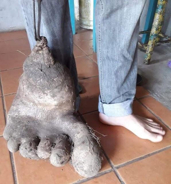 """Casal catarinense colhe 'pé de batata"""" de 8 kg no quintal da casa deles"""