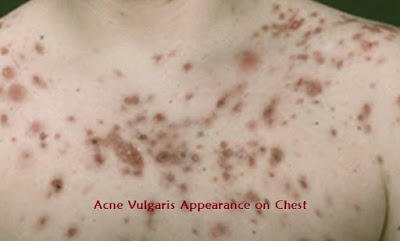Acne Vulgaris Appearance on Chest