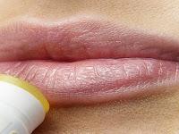 Penyebab dan Cara Mengatasi Bibir Kering & Pecah-Pecah yang Tepat