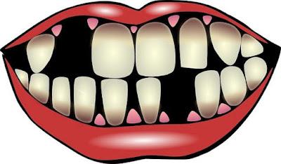 تفسير حلم سقوط الأسنان في المنام