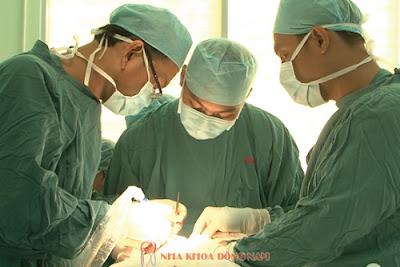 tư vấn cấy ghép răng implant -6
