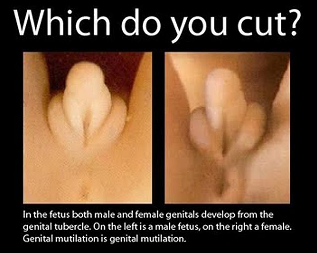 clitoridectomy female genital why