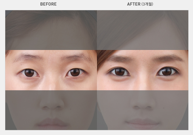 how to help tired looking eyes