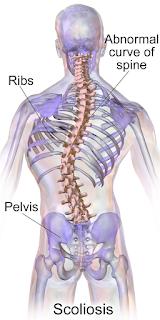 http://toshhospitals.com/spine-surgery/