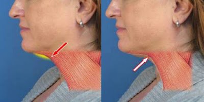 See How To Lose Weight In Your Neck Using These Tips