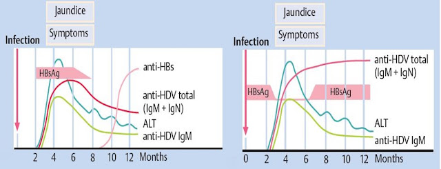 hepatitis virus akut D Gambar diagram ilustrasi serologis HDV : HBV/HDV coinfection (kiri), HBV/HDV superinfection (kanan), HBsAg, anti-HBs, anti-HDV total, IgM, IgN, imunoglobulin, kurva infeksi terhadap waktu