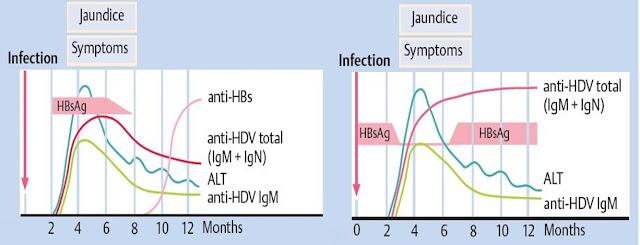 hepatitis virus akut D Gambar diagram ilustrasi serologis HDV : HBV/HDV coinfection (kiri), HBV/HDV superinfection (kanan), HBsAg, anti-HBs, anti-HDV total, IgM, IgN, imunoglobulin, kurva infeksi terhadap waktu