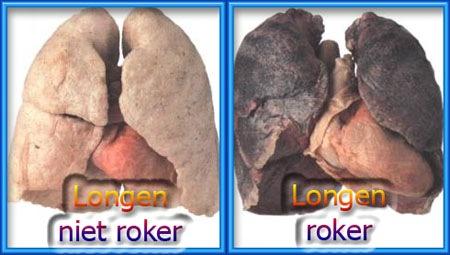 Arbeids Geneeskundige Sprokkels Cardiovasculaire Risicofactoren