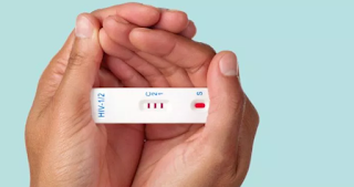 HIV Using a HIV Home Test Kit