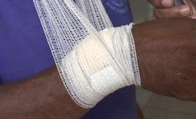 Homem é atingido com bala perdida em Itaituba.
