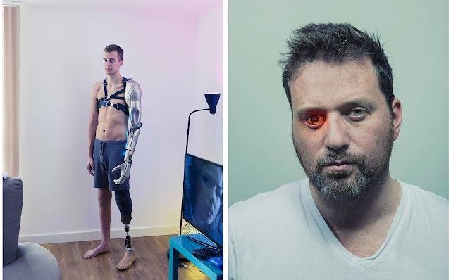 Джеймс Янг обратился к бионике, после того как перенес ампутацию руки.  Роберт Спенс потерявший глаз, встроил в протез беспроводную видеокамеру.