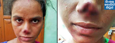 Indian husband Cuts Off Wife's Nose Because Her Family Couldn't Pay Her Dowry