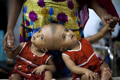 Conjoined Twin Girls Set To Be Separated