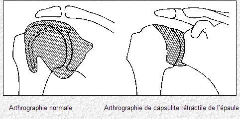 douleur niveau omoplate