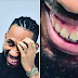 Go and whiten your teeth -  Nigerian Dentist calls out Phyno on Facebook