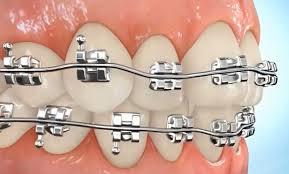 Kekurangan dan Kelebihan Memasang Kawat Gigi