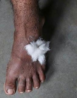 www.letmesay.in image showing leprosy in foot