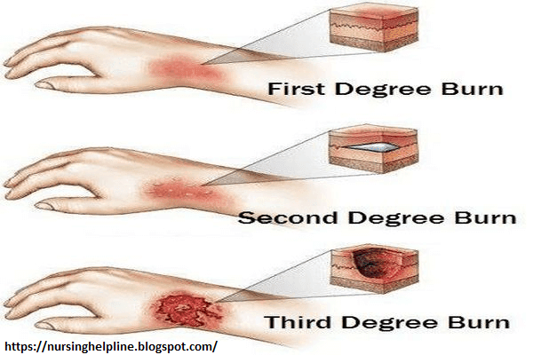 Different types of burns