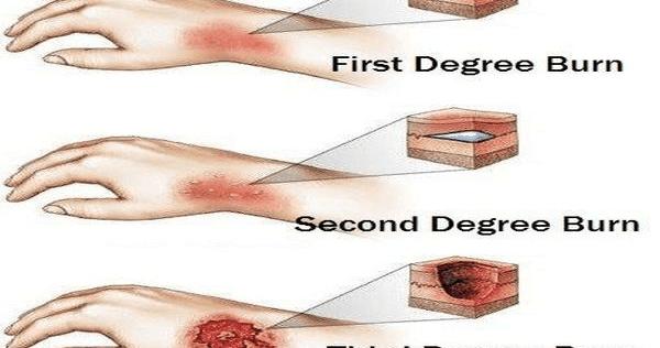 First Degree Burn | Second Degree Burn | Third Degree Burn