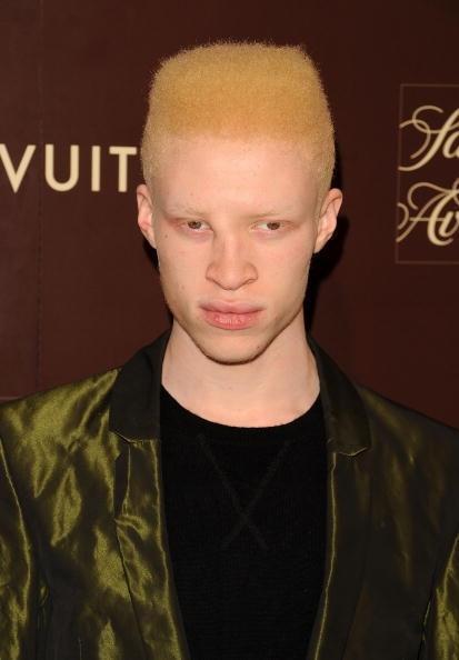 Nose shaun albino model These 5
